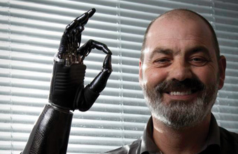 'Terminator-style' bionic hand proves life-changing for amputee